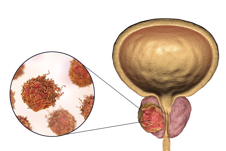 erkrankung der prostata