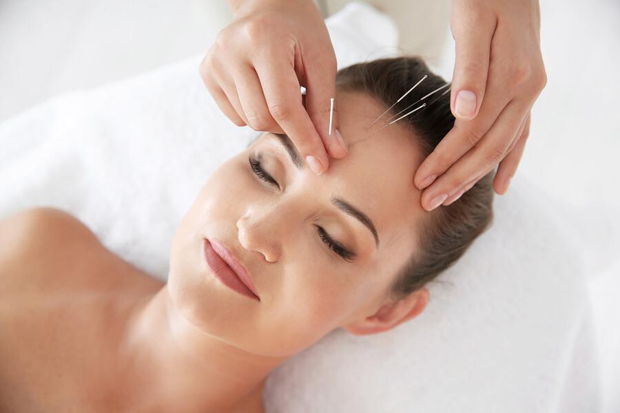 frau bei einer akupunktur