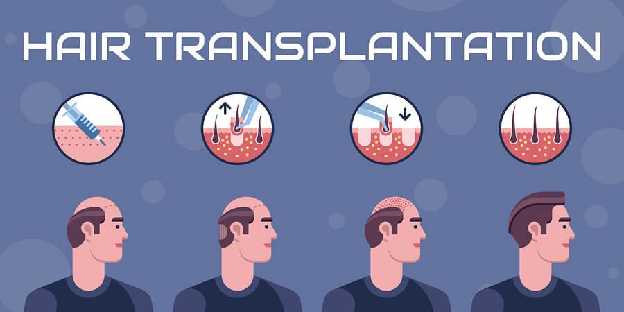 haar transplatation infografik