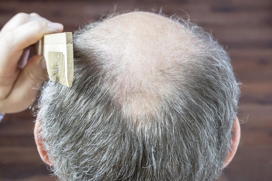 mann mit lichtem grauen haar