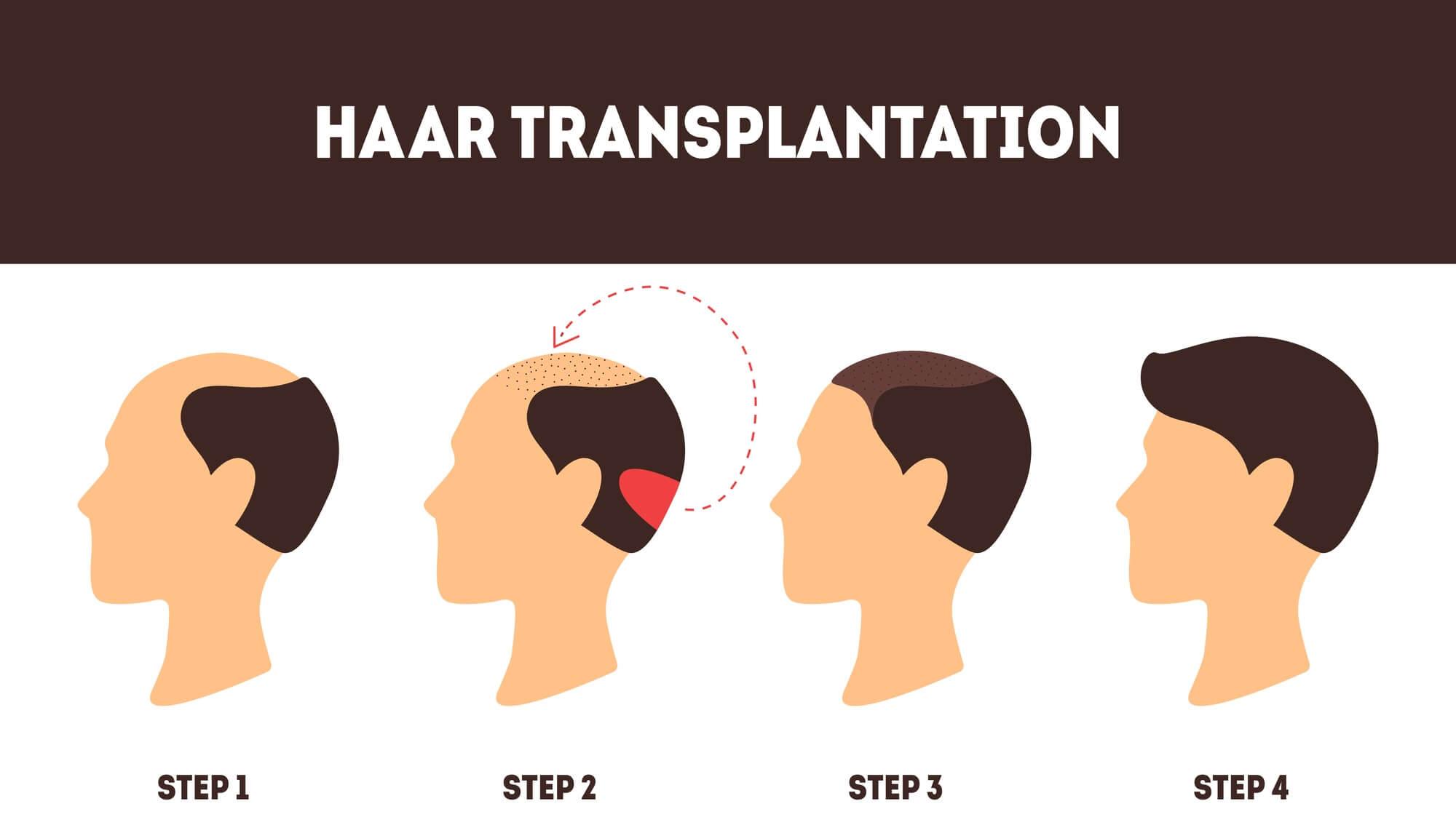 Ablauf - So geht der Arzt bei einer Haartransplantation vor