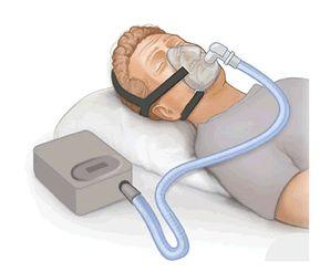 CPAP-Masken