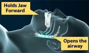 Mittel gegen Schnarchen PureSleep Anti-Schnarch Dentalstück